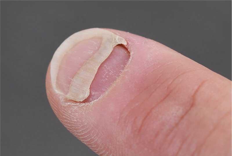 Nagelablösung Behandlung Ursachen Ablösung Des Nagels