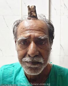 Unbelievable! Man Grows Four-inch Horn After Head Injury (Photos)