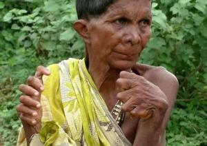 Woman Born With 12 Fingers, 20 Toes Tagged 'Witch' By Neighbours