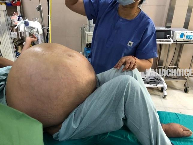 Indian Doctors Remove 'World's Largest Ovarian Tumour' Weighing 50kg From Woman (Pix)