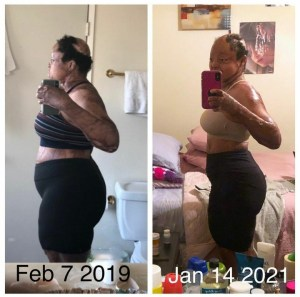 Plane Crash Survivor, Kechi Shares Weight Loss Transformation (Before & After)