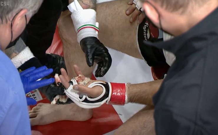MMA Fighter, Khetag Pliev Loses Finger During Fight (Photos, Video)