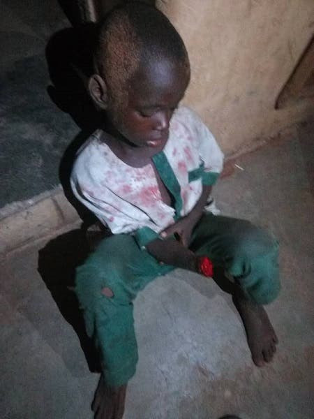 Man Cuts Off 7-Year-Old Quranic Student's Hand In Kwara - [Photo]
