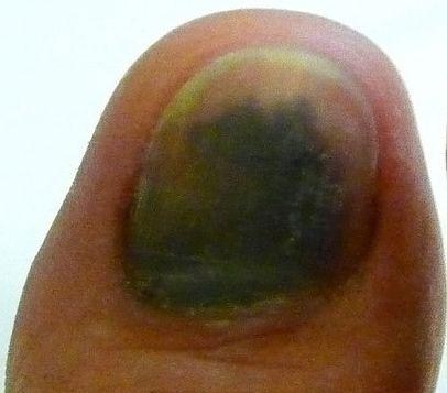 Black Toenail Fungus Onychomycosis Fingernails Treatment