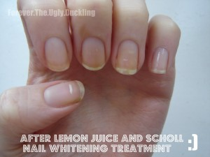 Nailcarehq Yellow Nails Before Using Lemon Juice To Remove Stains