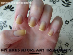 Yellow Nails Before Using Lemon Juice To Remove Stains Marina Ftyd