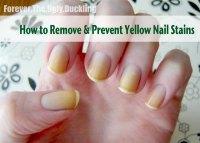 Yellow toenails and diabetes - Awesome Nail