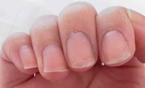 peeling-nails