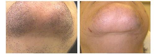 Dauerhafte Haarenternung durch Laser am Kinn