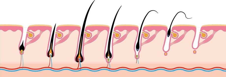 Dauerhafte Haarenternung durch Laser