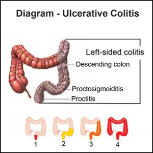 I Struggled With Ulcerative Colitis During Pregnancy   My