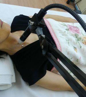 レーザー治療中の写真