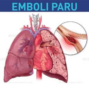 Obat Emboli Paru