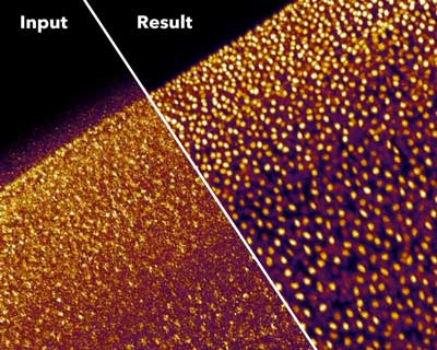 Neural networks let microscopists see more