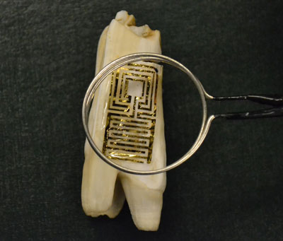 graphene wireless sensor biotransferred onto the surface of a tooth