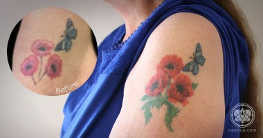 An old tattoo of three poppies given a new lease of life by Naomi Hoang, NAOHOA Luxury Bespoke Tattoos, Cardiff, Wales (UK).