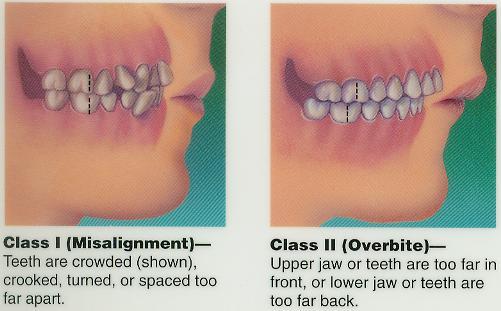 Orthodonics Dentistry  Naperville Dentist JA Haselhorst