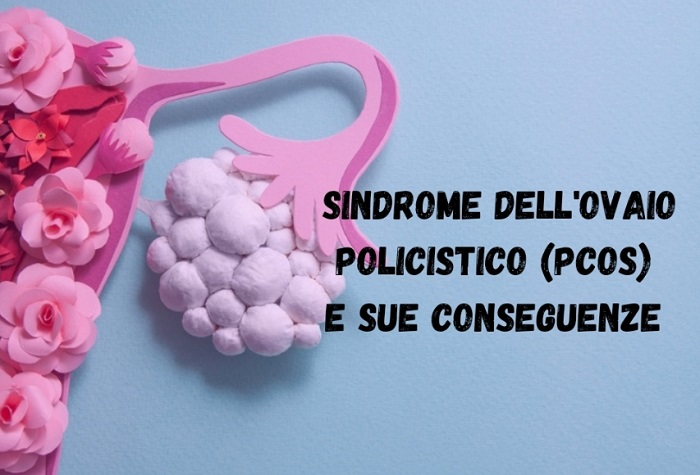 PCOS E LE SUE CONSEGUENZE