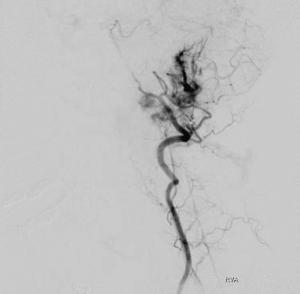 Arteriogram 2