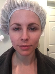 HYDRA FACIAL REVIEW: IS IT WORTH IT? by Nashville beauty blogger Nashville Wifestyles