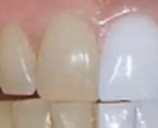 Dişlerimiz Neden Sarı