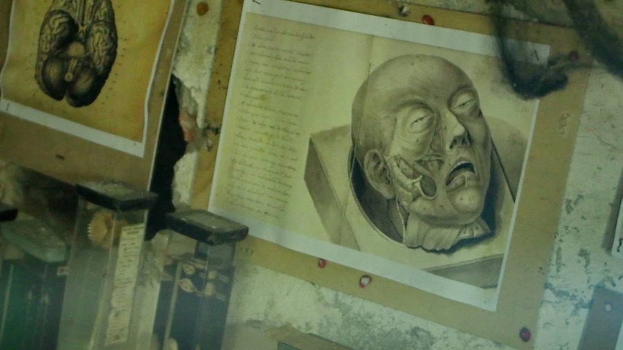 Frankenstein z Ząbkowic Śląskich. Szkice zwłok.
