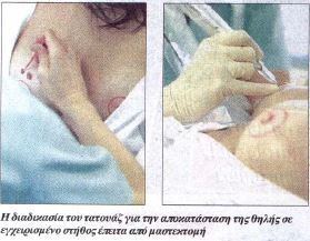 Espresso - Επανορθωτική χειρουργική του μαστού - 3