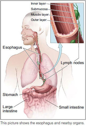 Esophageal Cancer