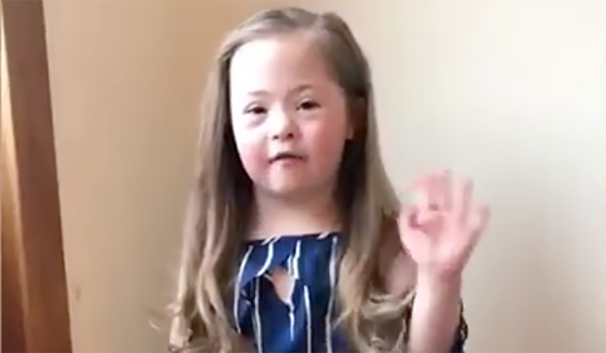 Downs syndrome girl facebook be