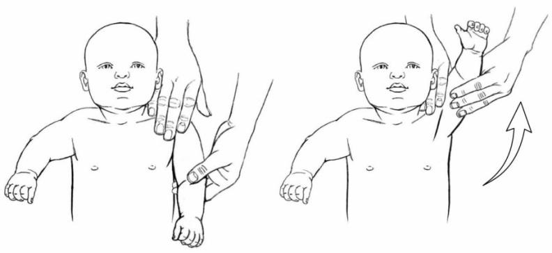 Exercises Upper Extremities :: Nationwide Children's Hospital