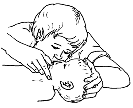 Cardiopulmonary Resuscitation (CPR) for Infants