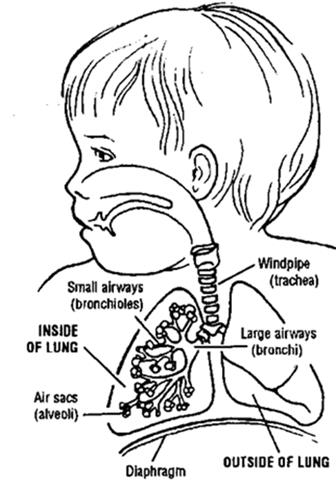 Tracheostomy: What It Is and When It Is Needed