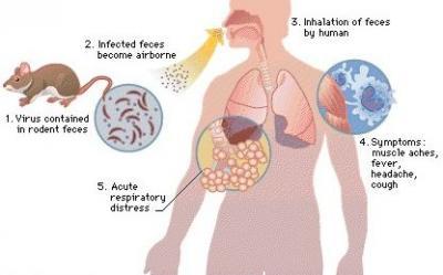 Hantavirus Pulmonary Syndrome (HPS) Causes, Symptoms, Diagnosis ...