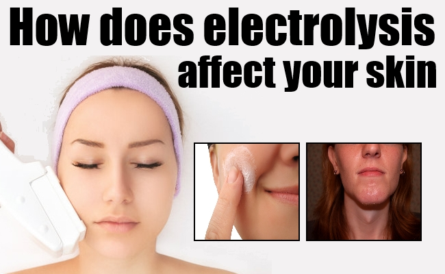 How does electrolysis hair removal work : Mcdonald free coupons