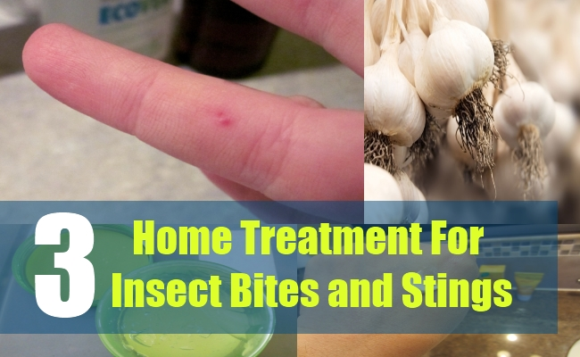3 Home Treatment For Insect Bites and Stings