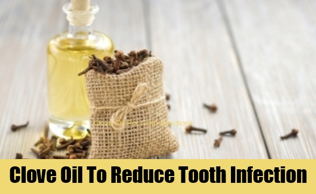 Clove Oil To Reduce Tooth Infection