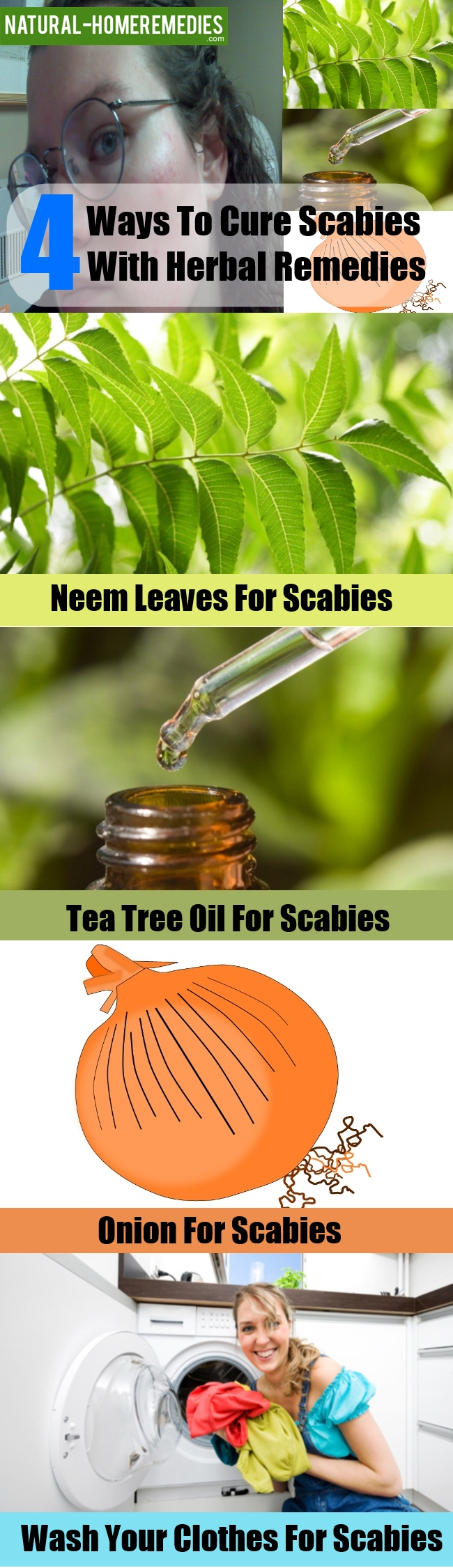 Cure Scabies With Natural And Herbal Remedies