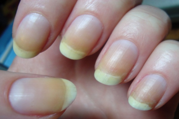 How To Remove Yellow Stains On Fingernails Get Rid Of Yellow Fingernails What Causes