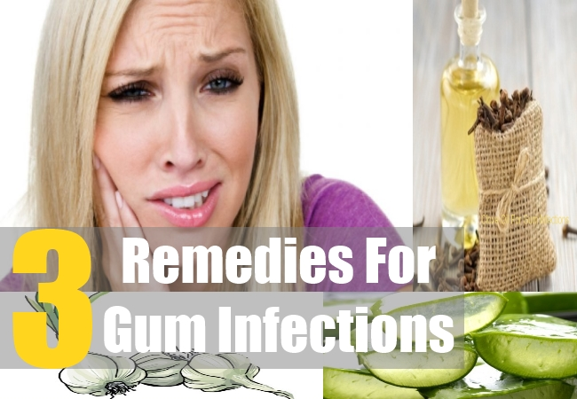 3 Remedies For Gum Infections