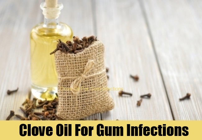 Clove Oil For Gum Infections