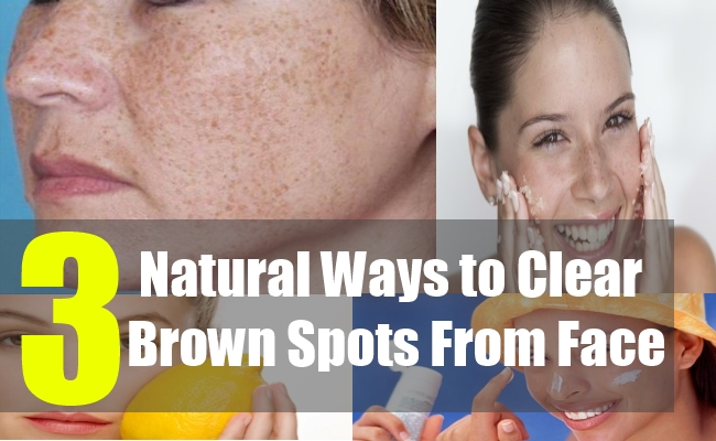3 Natural Ways to Clear Brown Spots from Face