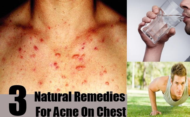 How To Cure Acne On Your Chest With Natural Remedies