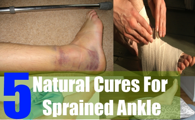 5 Natural Cures For Sprained Ankle