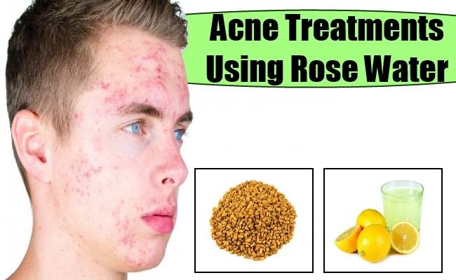 Natural acne treatment get rid of acne scars rose water face acne treatments ccuart Image collections