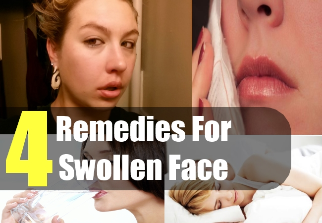 Home remidies facial swelling