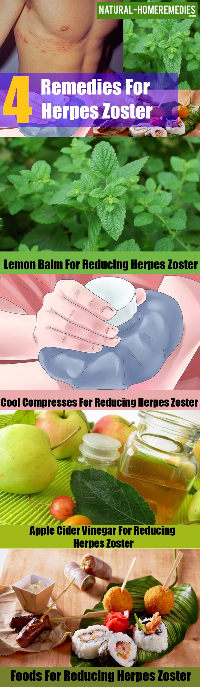 Remedies For Herpes Zoster