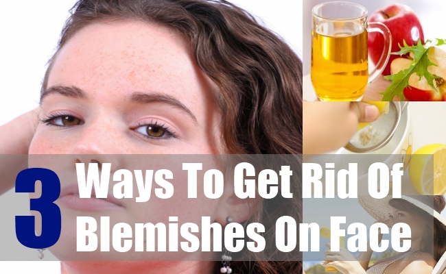 3 Ways To Get Rid Of Blemishes On Face