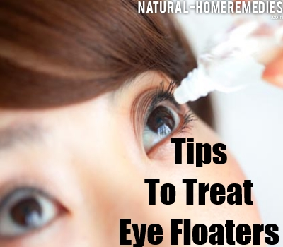 Natural Treatment For Floaters In Eyes