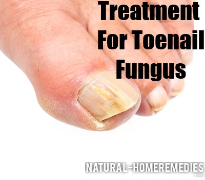 Natural Remedies For Yellowing Toenails