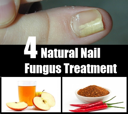 4 Ways To Treat Nail Fungus Naturally - Causes And Symptoms Of Nail ...
